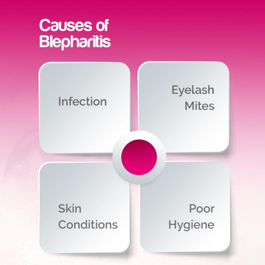 Causes of Blepharitis